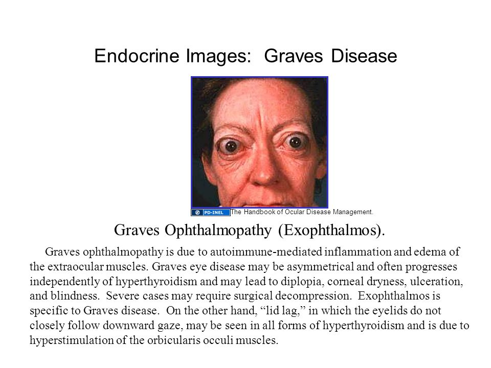Endocrine Images: Graves Disease Graves Ophthalmopathy (Exophthalmos).