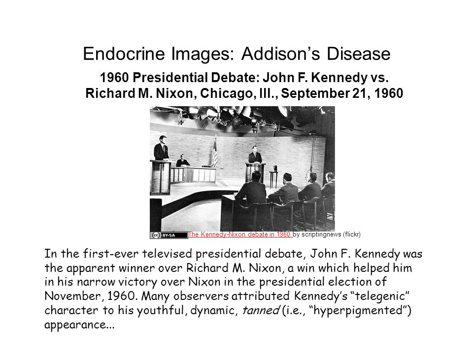 Endocrine Images: Addison's Disease 1960 Presidential Debate: John F.