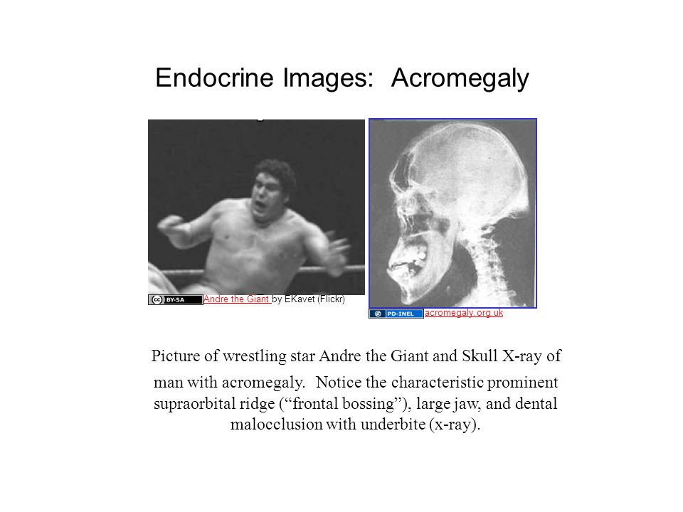 Endocrine Images: Acromegaly Picture of wrestling star Andre the Giant and Skull X-ray of man with acromegaly.