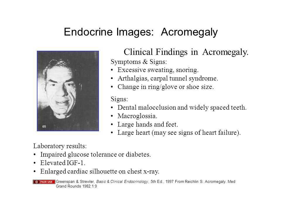 Endocrine Images: Acromegaly Clinical Findings in Acromegaly.