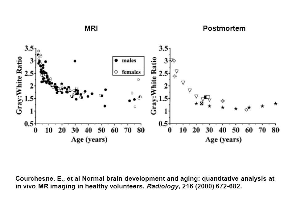 Courchesne, E., et al Normal brain development and aging: quantitative analysis at in vivo MR imaging in healthy volunteers, Radiology, 216 (2000) 672