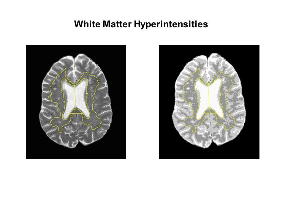 White Matter Hyperintensities