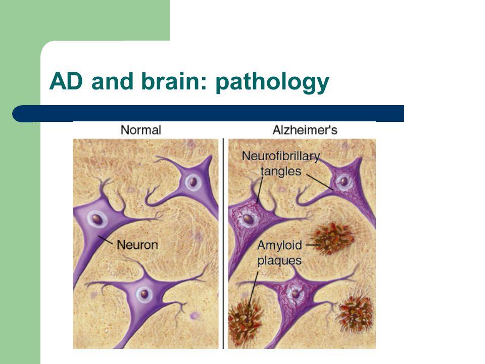 AD and brain: pathology