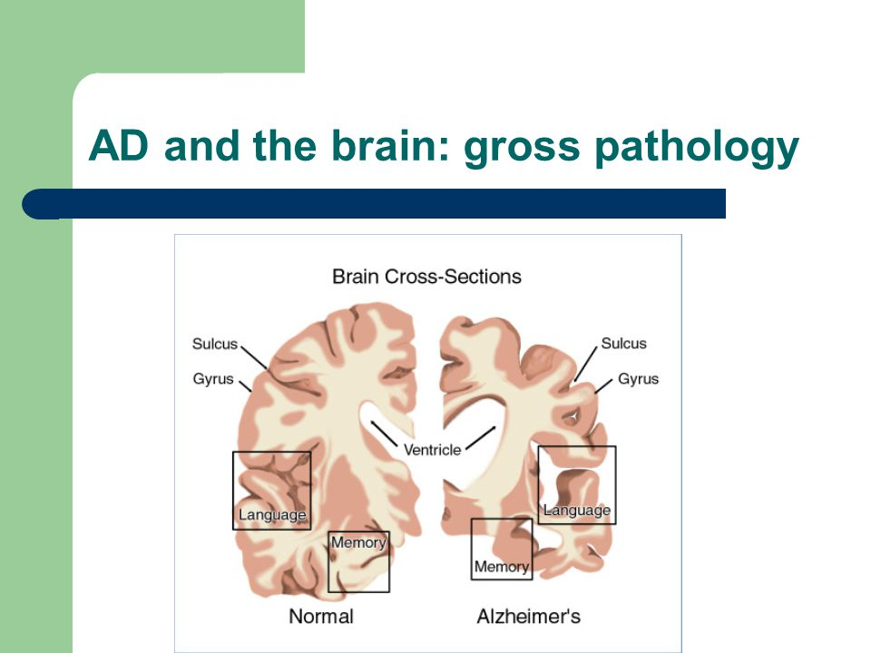AD and the brain: gross pathology