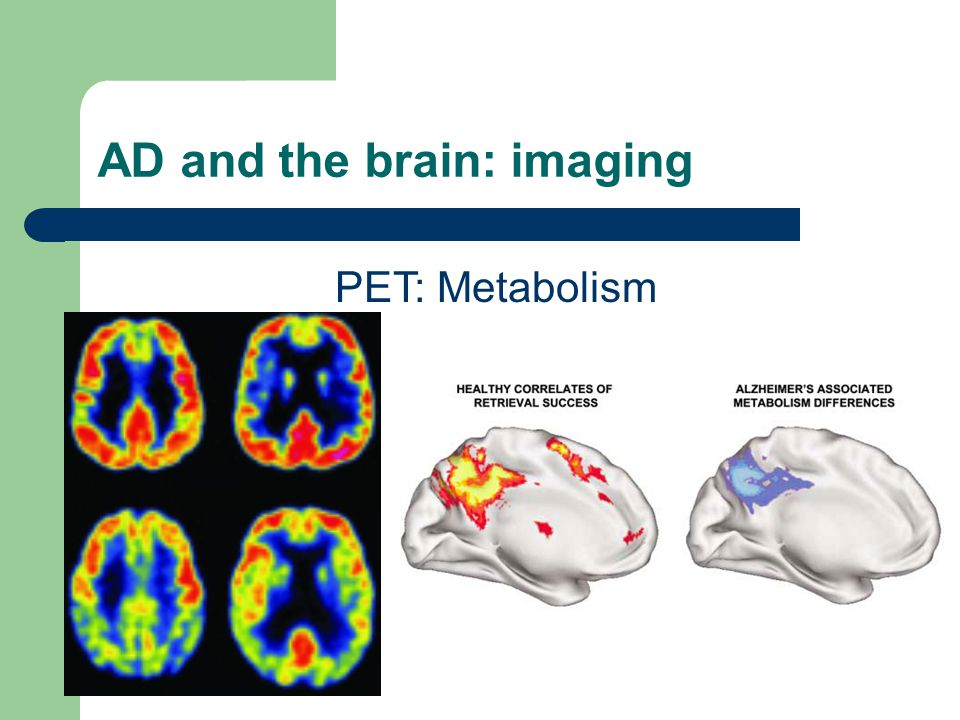 AD and the brain: imaging PET: Metabolism