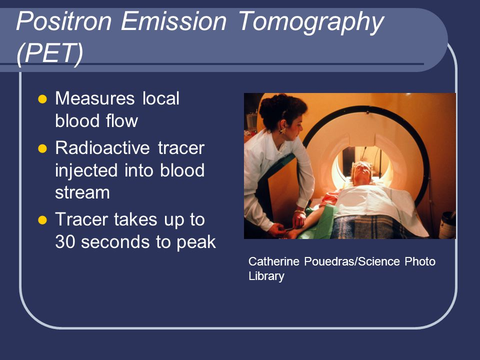Positron Emission Tomography (PET) Measures local blood flow Radioactive tracer injected into blood stream Tracer takes up to 30 seconds to peak Catherine Pouedras/Science Photo Library