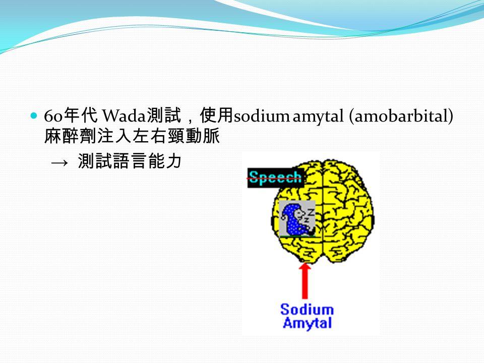 60 年代 Wada 測試,使用 sodium amytal (amobarbital) 麻醉劑注入左右頸動脈 → 測試語言能力