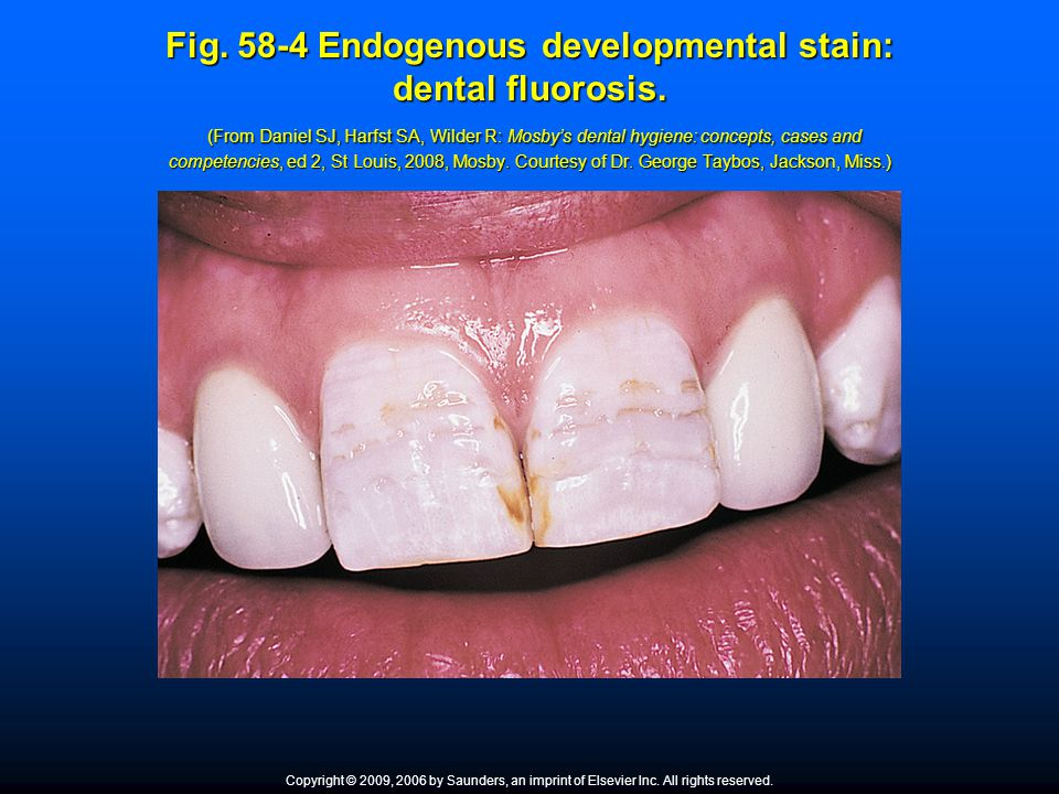 Fig. 58-4 Endogenous developmental stain: dental fluorosis. (From Daniel SJ, Harfst SA, Wilder R: Mosby's dental hygiene: concepts, cases and competen