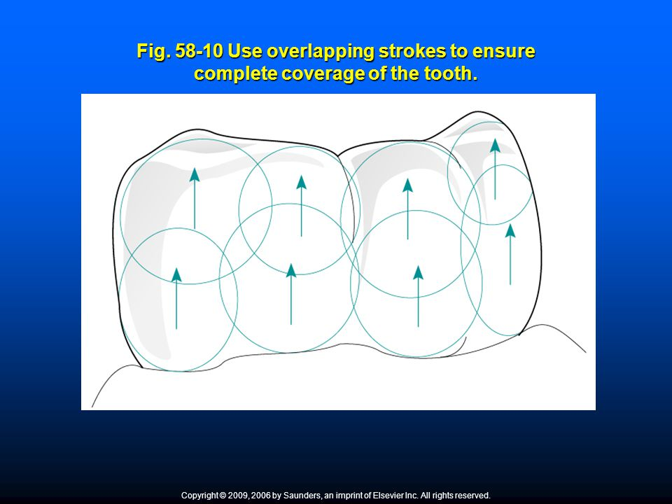 Fig. 58-10 Use overlapping strokes to ensure complete coverage of the tooth. Copyright © 2009, 2006 by Saunders, an imprint of Elsevier Inc. All right