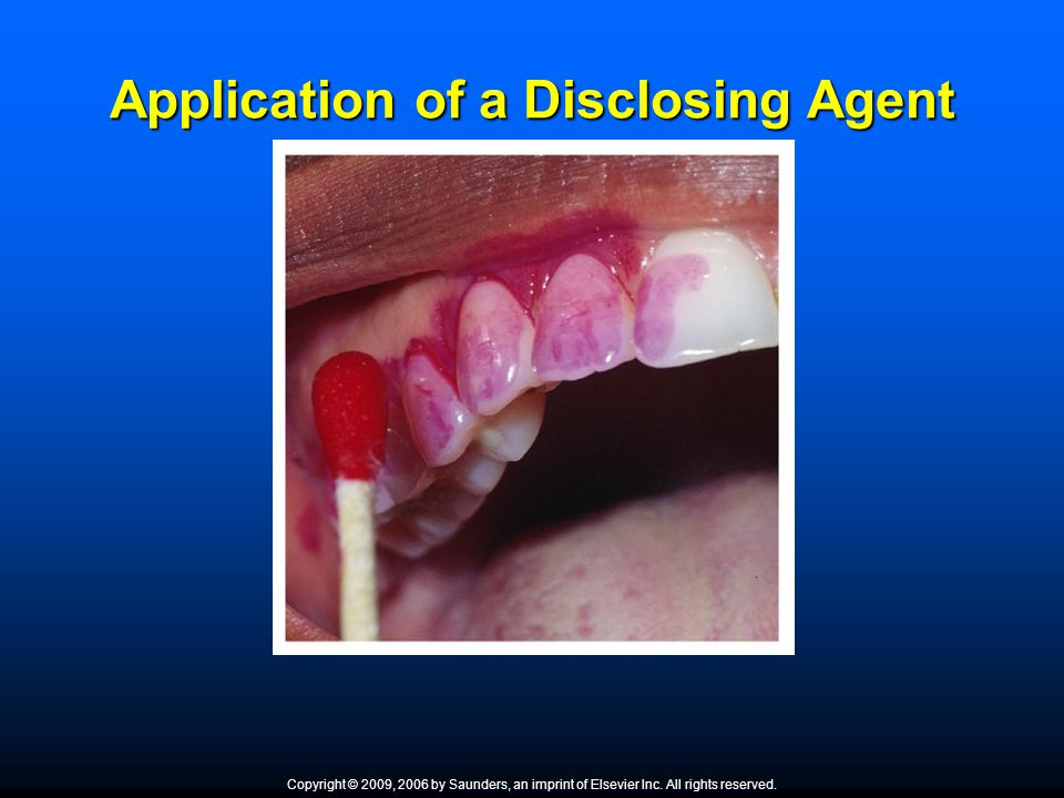 Application of a Disclosing Agent Copyright © 2009, 2006 by Saunders, an imprint of Elsevier Inc. All rights reserved.