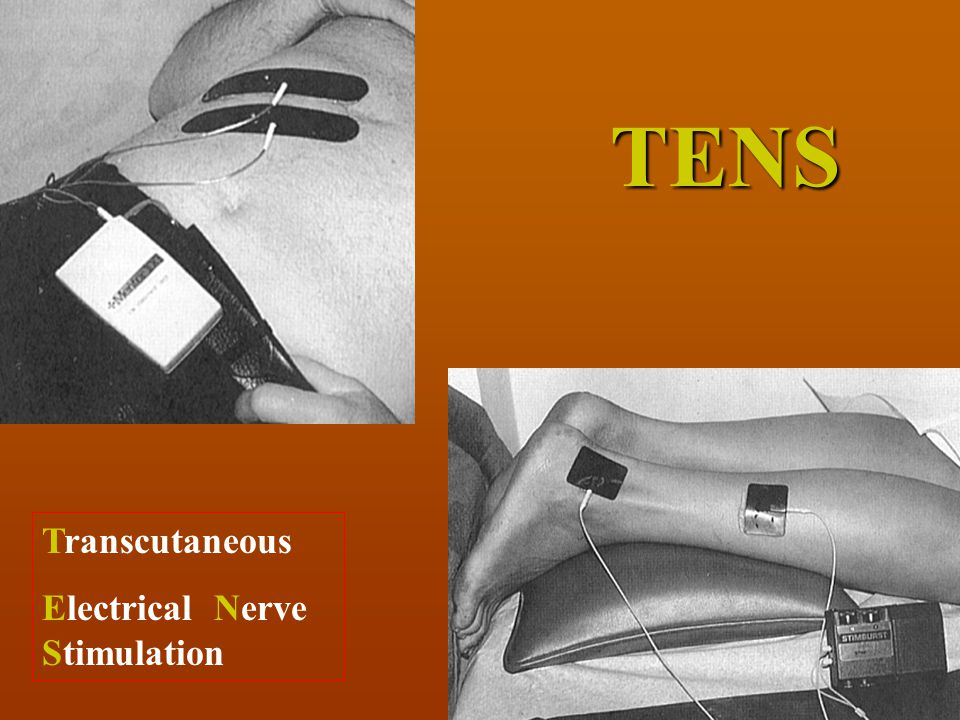 TENS Transcutaneous Electrical Nerve Stimulation