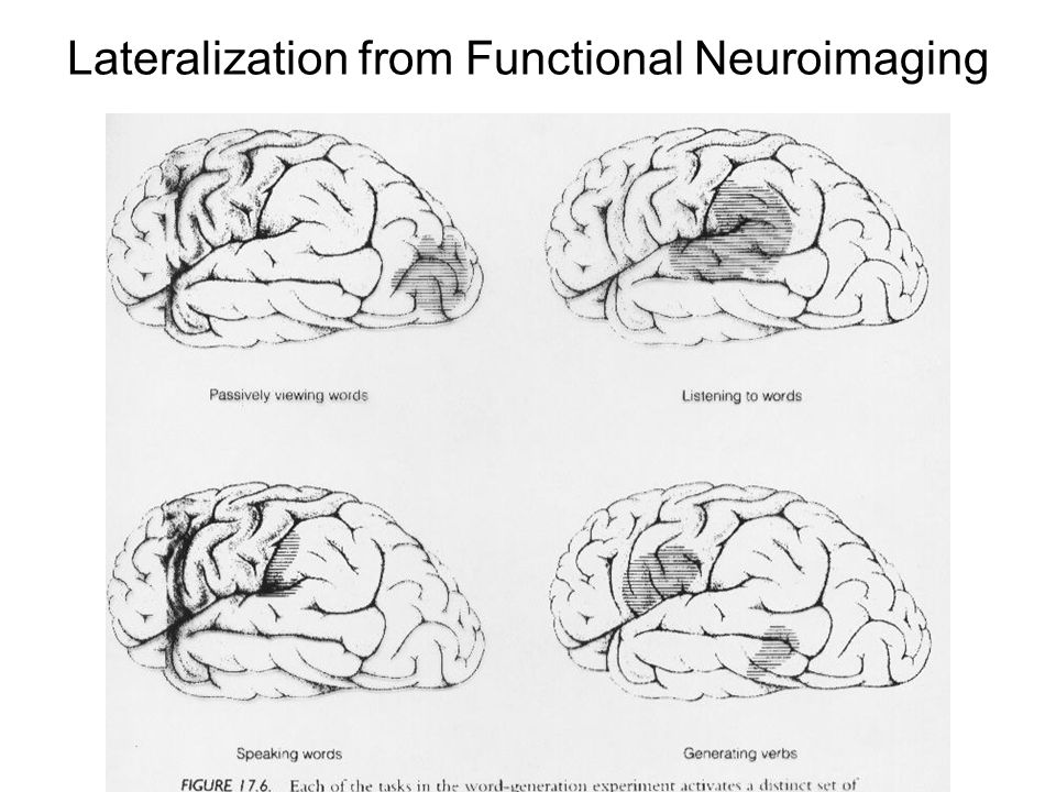 Lateralization from Functional Neuroimaging