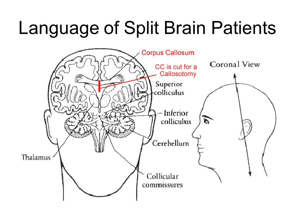 Language of Split Brain Patients