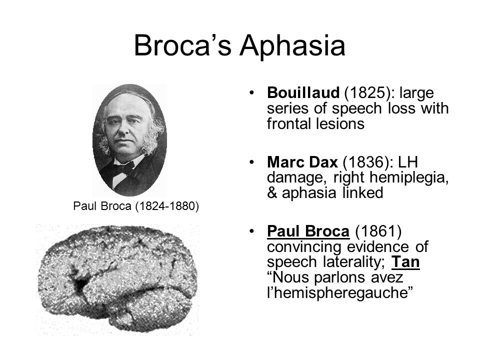 Broca's Aphasia Bouillaud (1825): large series of speech loss with frontal lesions Marc Dax (1836): LH damage, right hemiplegia, & aphasia linked Paul Broca (1861) convincing evidence of speech laterality; Tan Nous parlons avez l'hemispheregauche Paul Broca (1824-1880)