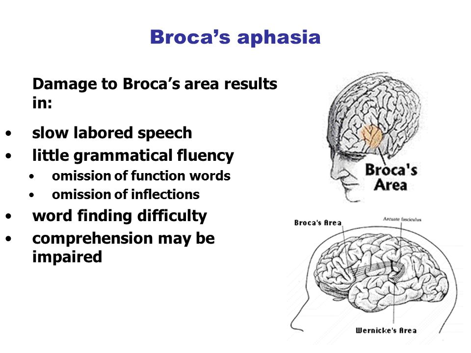 Damage to Broca's area results in: slow labored speech little grammatical fluency omission of function words omission of inflections word finding difficulty comprehension may be impaired Broca's aphasia