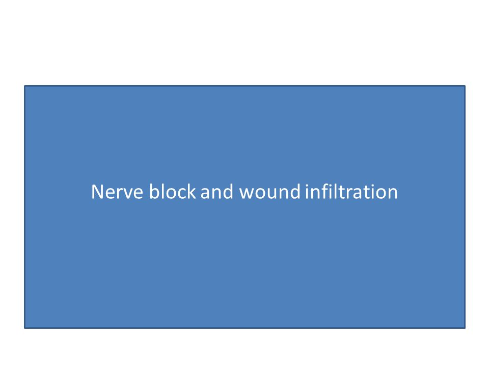 Nerve block and wound infiltration