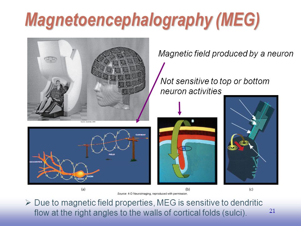 EE141 21 Magnetoencephalography (MEG)  Due to magnetic field properties, MEG is sensitive to dendritic flow at the right angles to the walls of corti