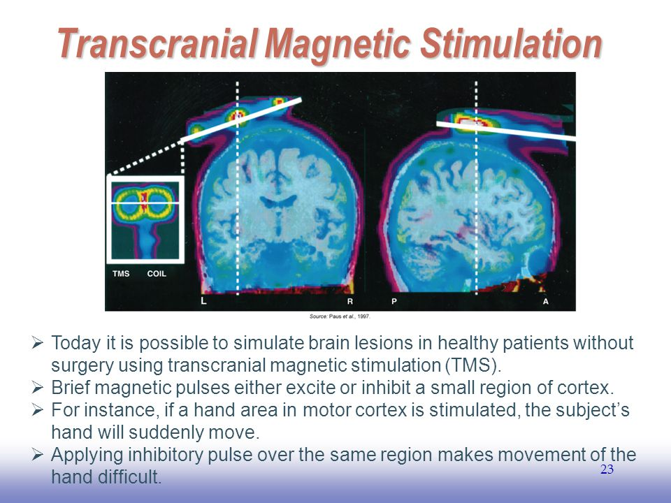 EE141 23 Transcranial Magnetic Stimulation  Today it is possible to simulate brain lesions in healthy patients without surgery using transcranial mag