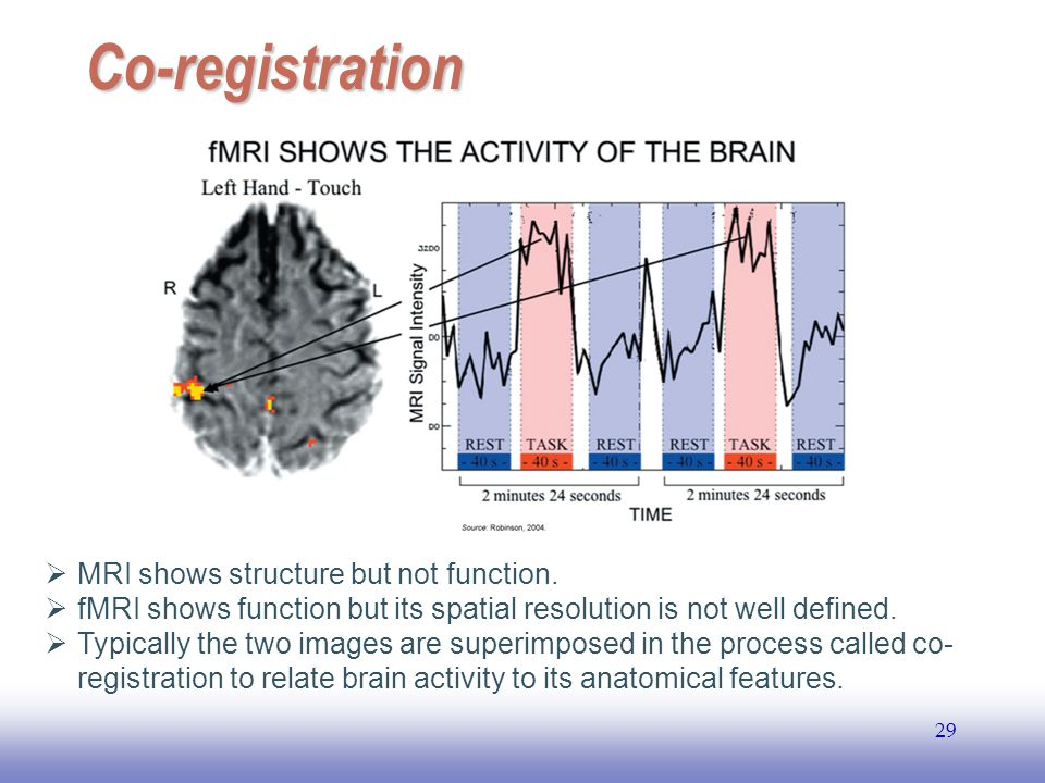 EE141 29 Co-registration  MRI shows structure but not function.  fMRI shows function but its spatial resolution is not well defined.  Typically the