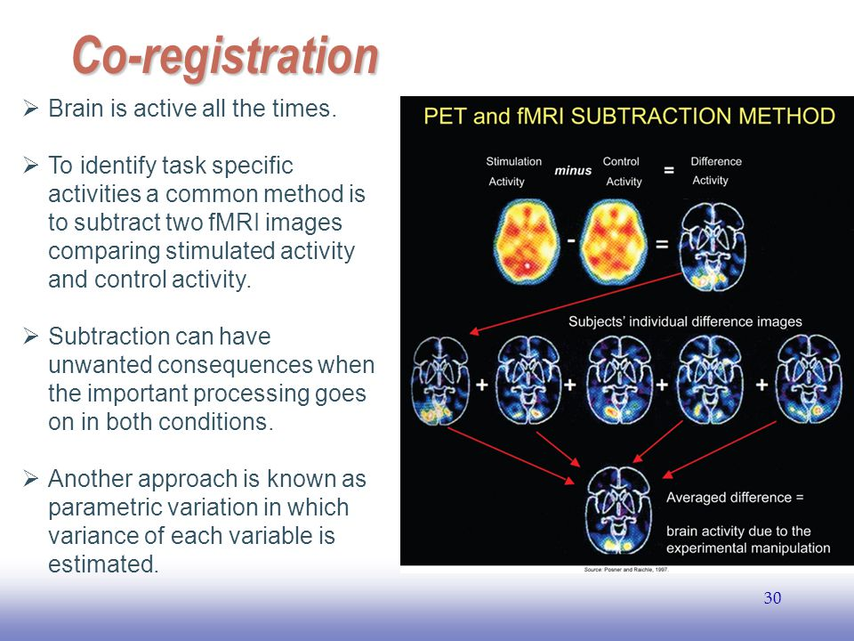 EE141 30 Co-registration  Brain is active all the times.  To identify task specific activities a common method is to subtract two fMRI images compar