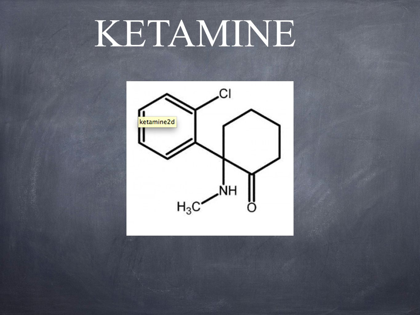 Ketamine as Adjunctive Analgesic to Opioids and Post-Operative Analgesia Himmelseher and Durieux (2005) highlighted several studies that utilized the effects of a subanesthetic dose of intravenous ketamine as an analgesia adjunct to general anesthesia.