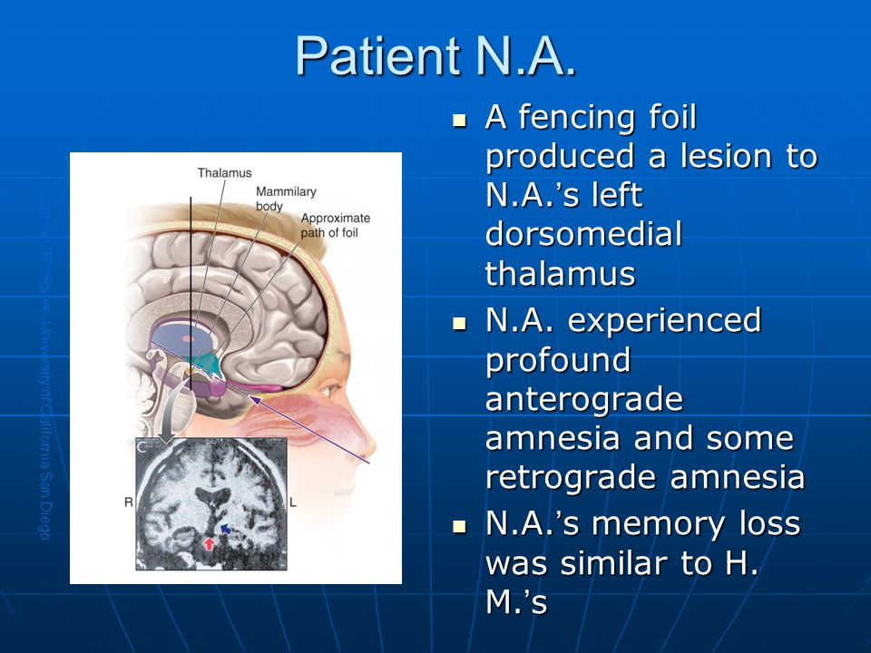 Patient N.A. A fencing foil produced a lesion to N.A.