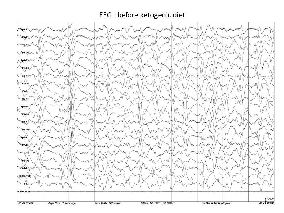 EEG : before ketogenic diet