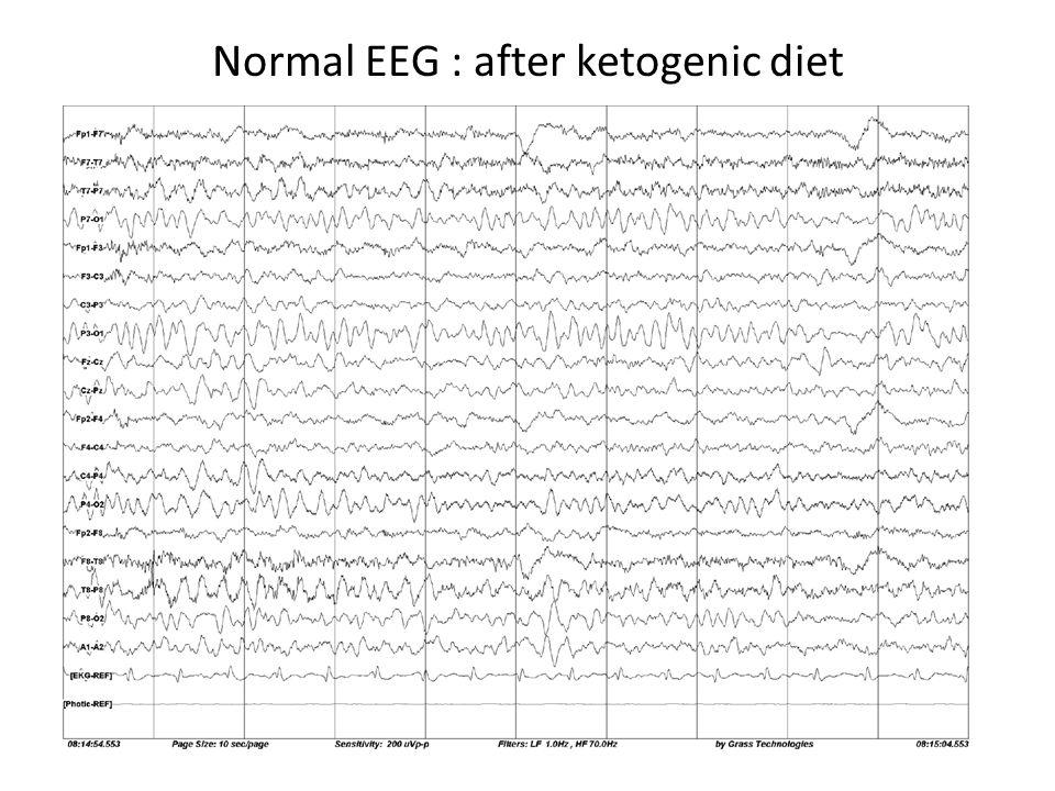 Normal EEG : after ketogenic diet