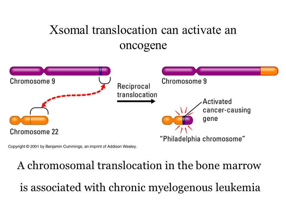 Xsomal translocation can activate an oncogene A chromosomal translocation in the bone marrow is associated with chronic myelogenous leukemia