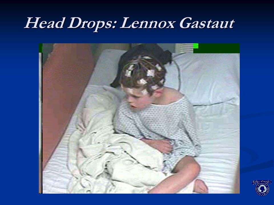 Head Drops: Lennox Gastaut