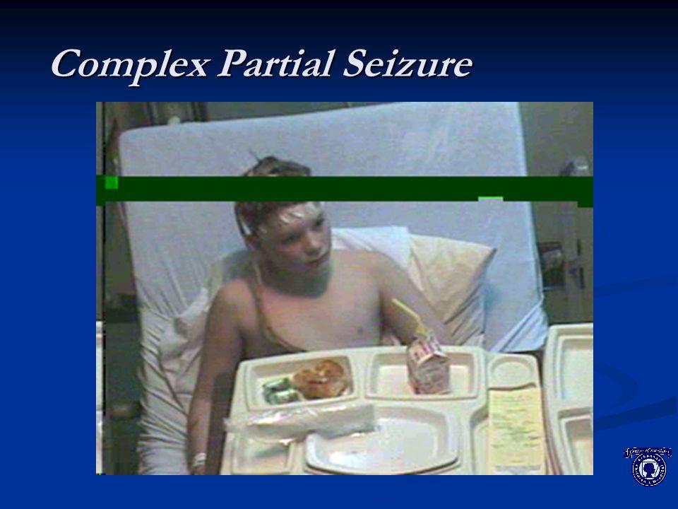 MRI: Tuberous Sclerosis Subependymal nodulesHamartoma