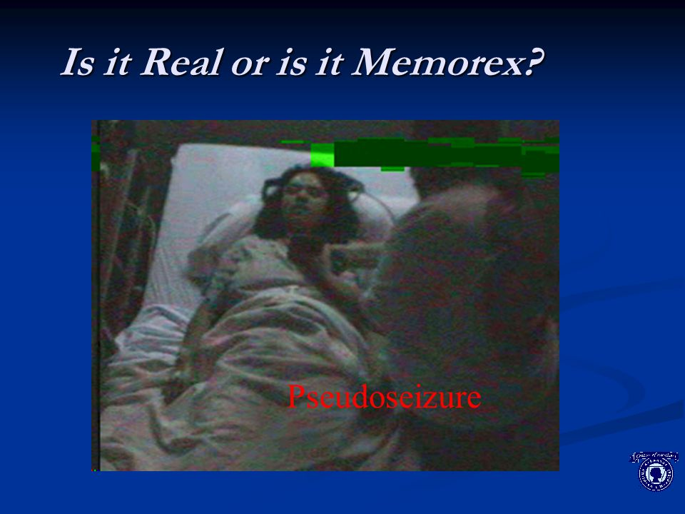 Is it Real or is it Memorex? Pseudoseizure