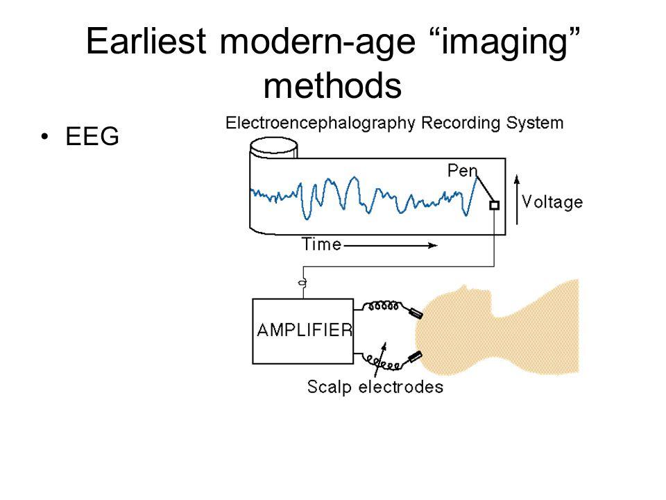 """Earliest modern-age """"imaging"""" methods EEG"""