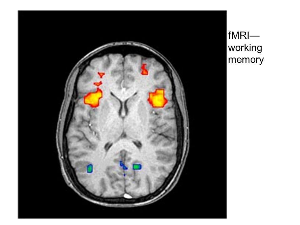 fMRI— working memory