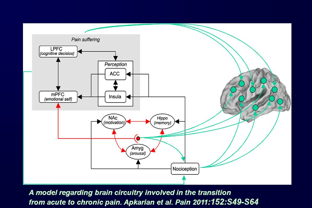 A model regarding brain circuitry involved in the transition from acute to chronic pain.
