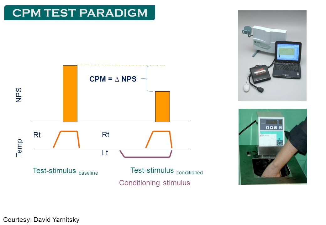Rt Lt CPM = ∆ NPS Test-stimulus baseline Test-stimulus conditioned Conditioning stimulus NPS Temp Courtesy: David Yarnitsky CPM TEST PARADIGM