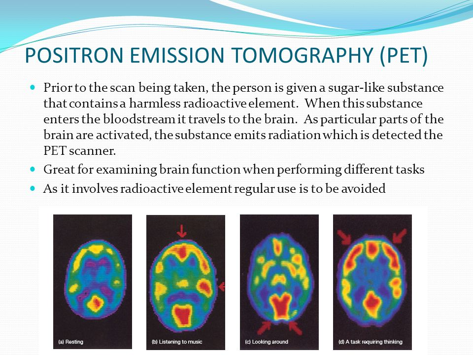 POSITRON EMISSION TOMOGRAPHY (PET) Prior to the scan being taken, the person is given a sugar-like substance that contains a harmless radioactive element.