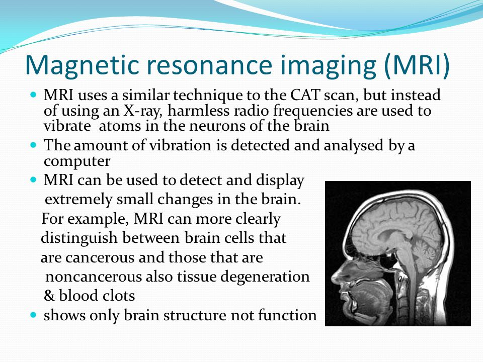 Magnetic resonance imaging (MRI) MRI uses a similar technique to the CAT scan, but instead of using an X-ray, harmless radio frequencies are used to vibrate atoms in the neurons of the brain The amount of vibration is detected and analysed by a computer MRI can be used to detect and display extremely small changes in the brain.