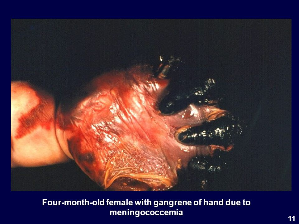 11 Four-month-old female with gangrene of hand due to meningococcemia