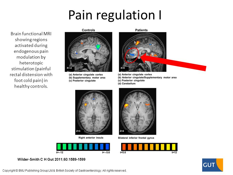 Brain functional MRI showing regions activated during endogenous pain modulation by heterotopic stimulation (painful rectal distension with foot cold pain) in healthy controls.