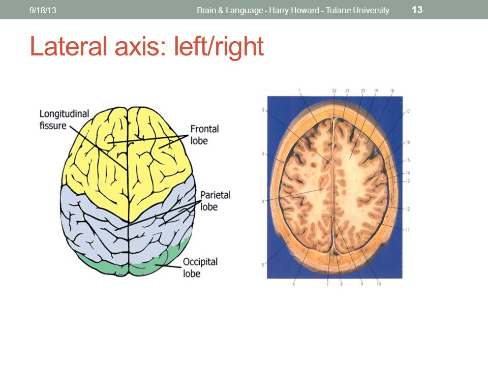 9/18/13Brain & Language - Harry Howard - Tulane University 13 Lateral axis: left/right