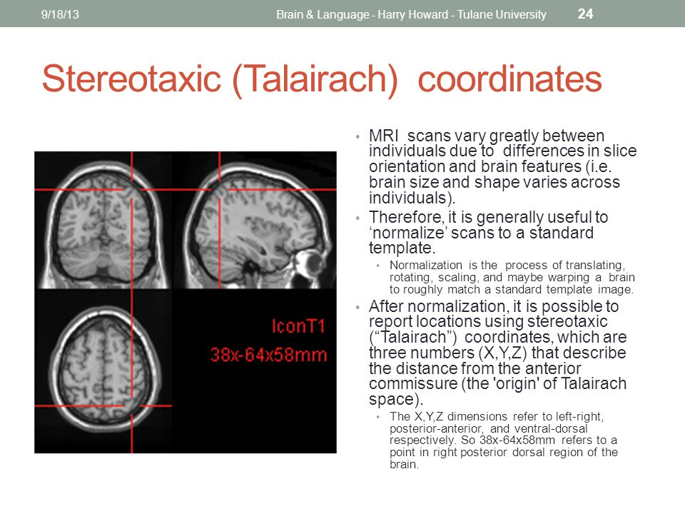 Stereotaxic (Talairach) coordinates MRI scans vary greatly between individuals due to differences in slice orientation and brain features (i.e.