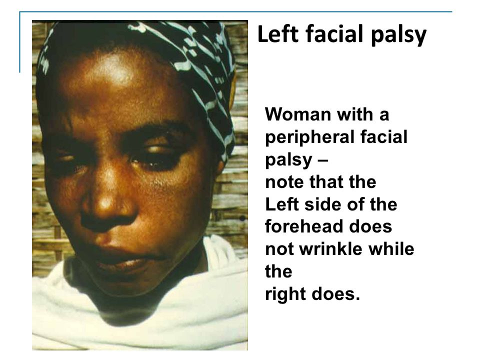 Left facial palsy Woman with a peripheral facial palsy – note that the Left side of the forehead does not wrinkle while the right does.
