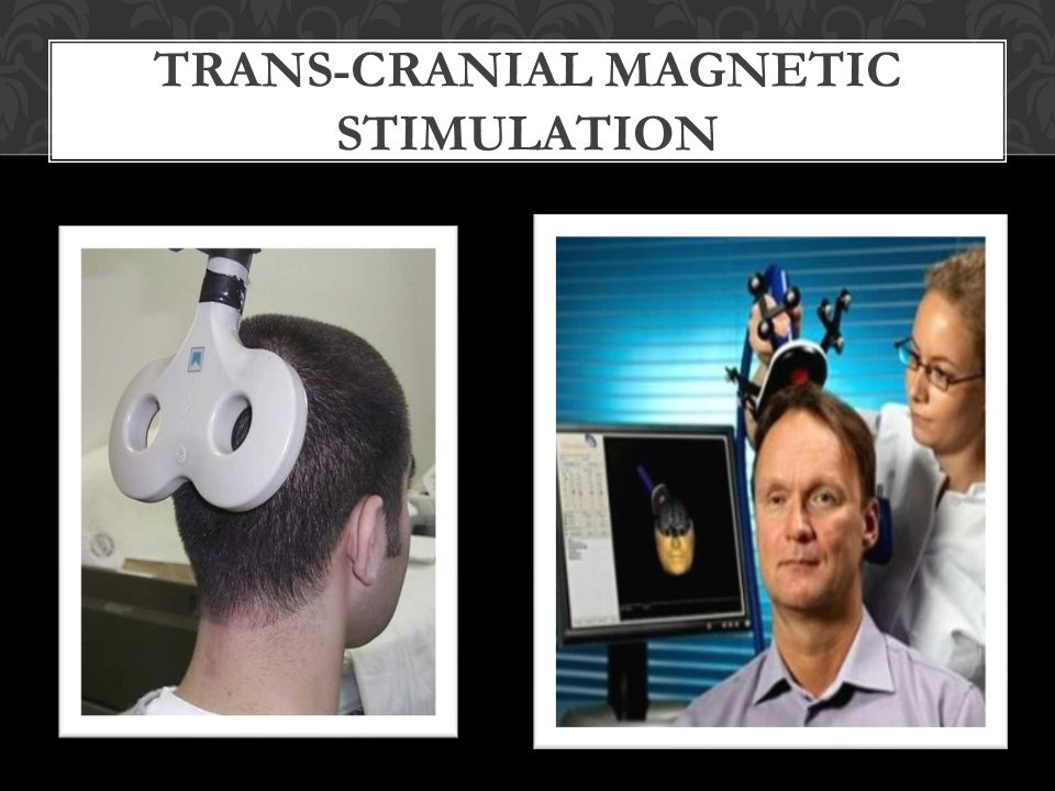 TRANS-CRANIAL MAGNETIC STIMULATION