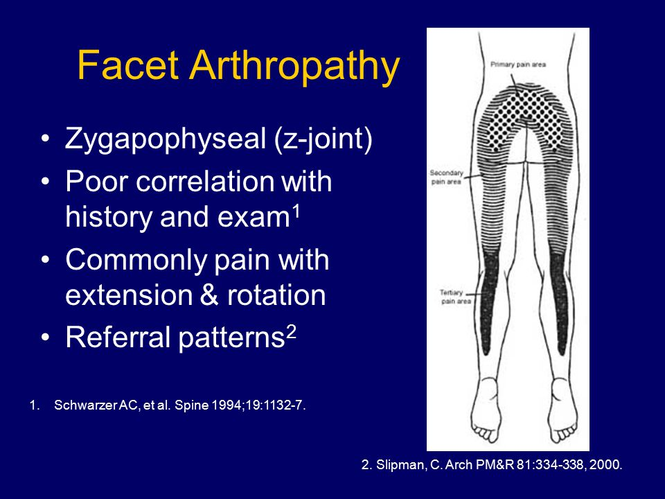 Facet Arthropathy Zygapophyseal (z-joint) Poor correlation with history and exam 1 Commonly pain with extension & rotation Referral patterns 2 1.Schwarzer AC, et al.