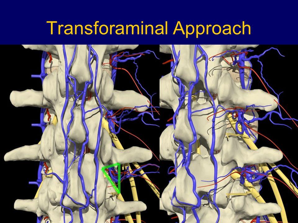 Transforaminal Approach