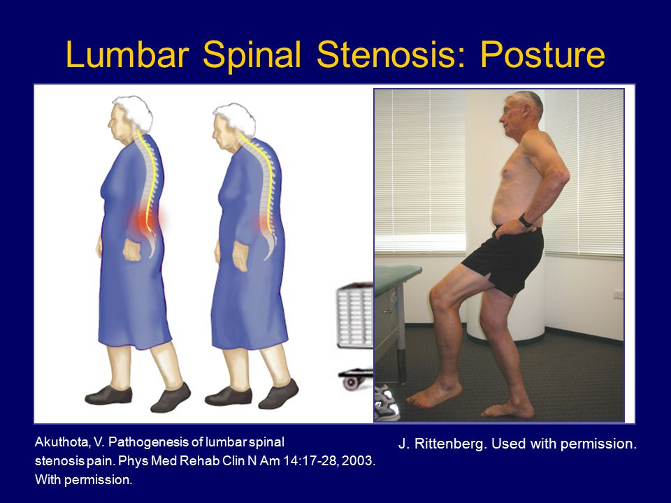 Lumbar Spinal Stenosis: Posture Akuthota, V. Pathogenesis of lumbar spinal stenosis pain. Phys Med Rehab Clin N Am 14:17-28, 2003. With permission. J.