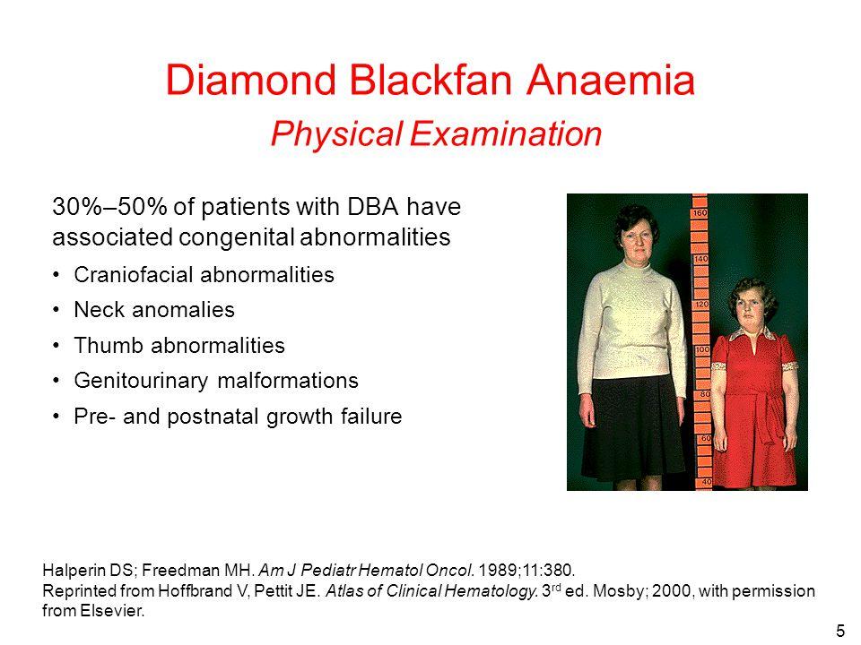 5 Diamond Blackfan Anaemia Physical Examination 30%–50% of patients with DBA have associated congenital abnormalities Craniofacial abnormalities Neck