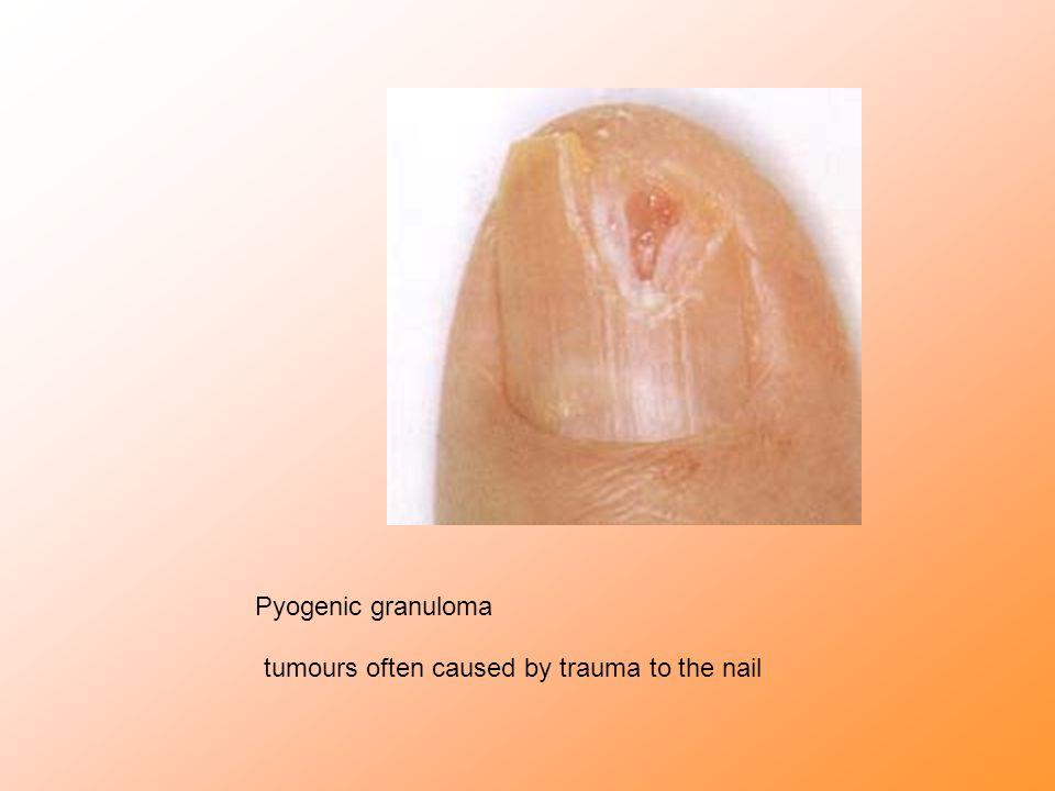 Pyogenic granuloma tumours often caused by trauma to the nail