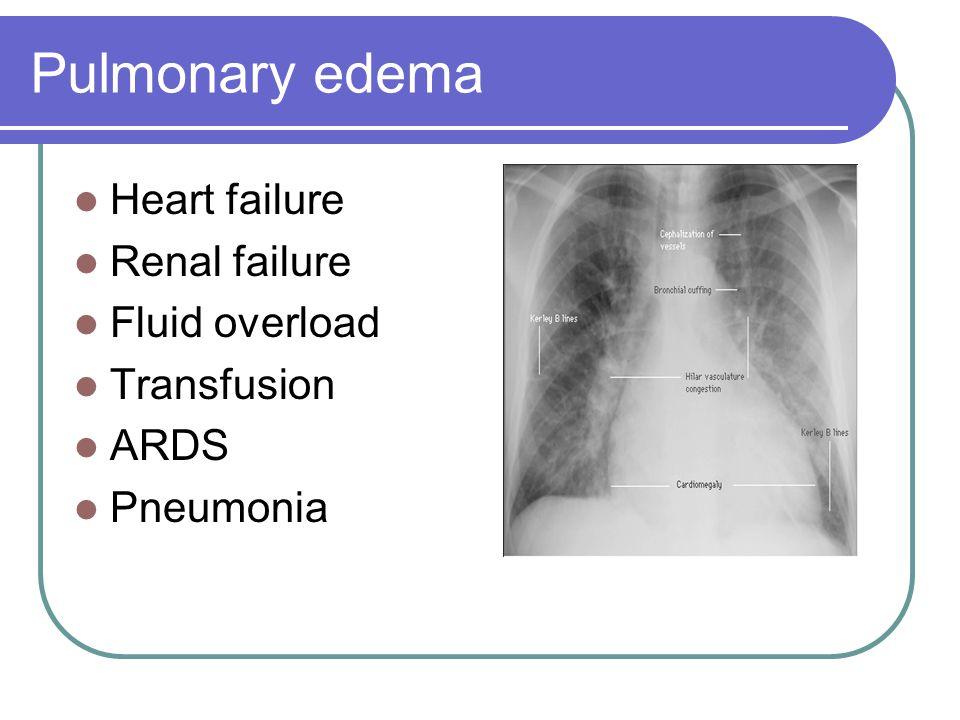 Pulmonary edema Heart failure Renal failure Fluid overload Transfusion ARDS Pneumonia